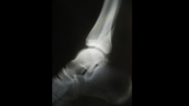 Stress Fracture of the Ankle