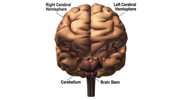 Schematic Diagram of a Normal Brain.