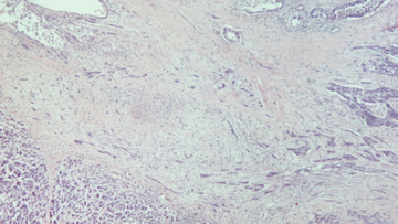 Micrograph showing adenosquamous carcinoma of the pancreas. (H&E × 40).