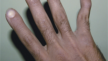 Swan-neck deformity in the fifth finger due to previous attacks of rheumatoid arthritis.