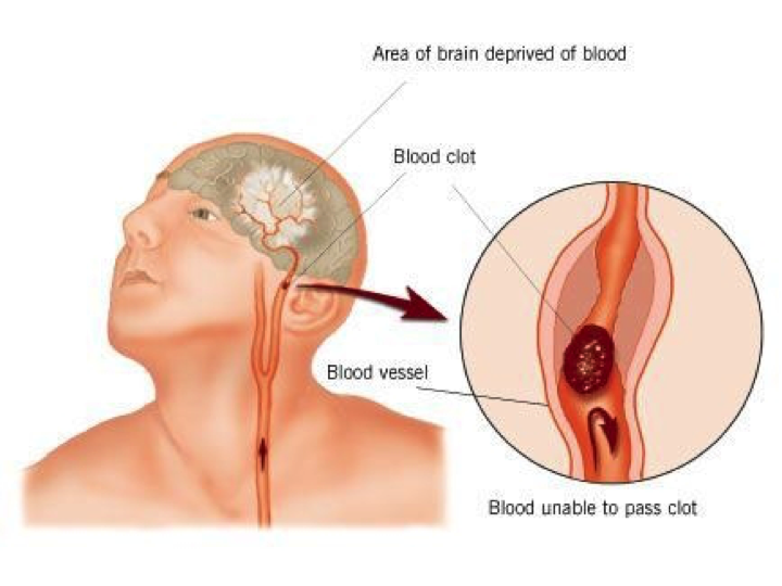 First Aid for Brain Stroke