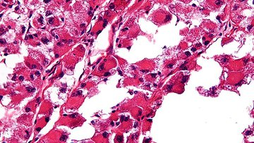 Very low magnification micrograph of an alveolar soft part sarcoma, commonly abbreviated ASPS. H&E stain.