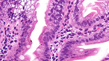 Very high magnification microscopic pathology image showing Abetalipoproteinemia.