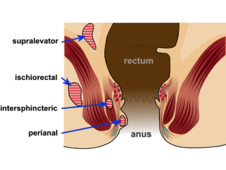 Diverticulosis risk anal sex