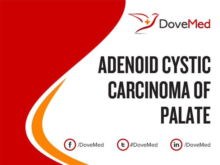 Adenoid Cystic Carcinoma of Palate