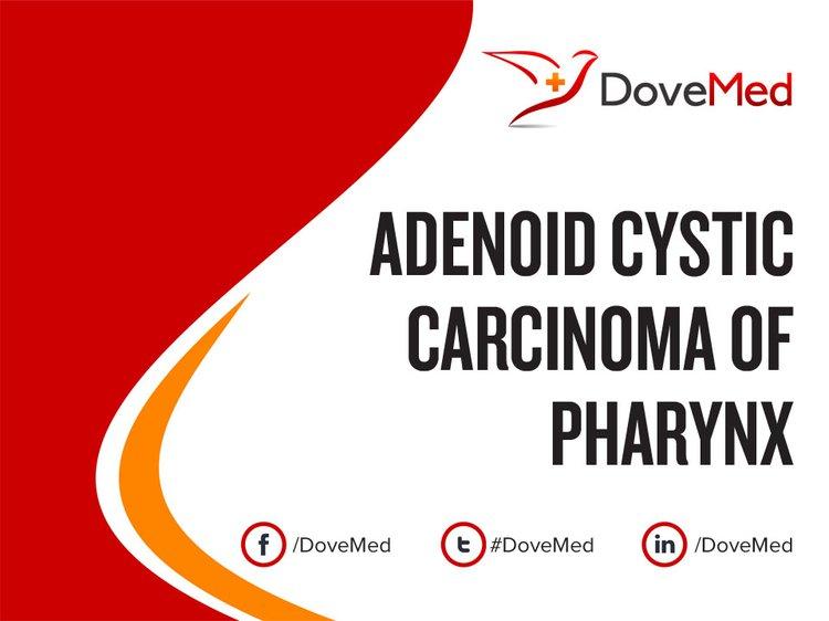 Adenoid Cystic Carcinoma Of Pharynx