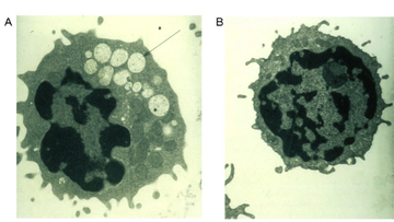Imaging showing a electron micrograph of a vacuolated lymphocyte from a mannosidosis patient (A) as compared to a lymphocyte from a normal control (B).