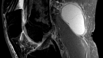MRI showing Baker's Cyst.
