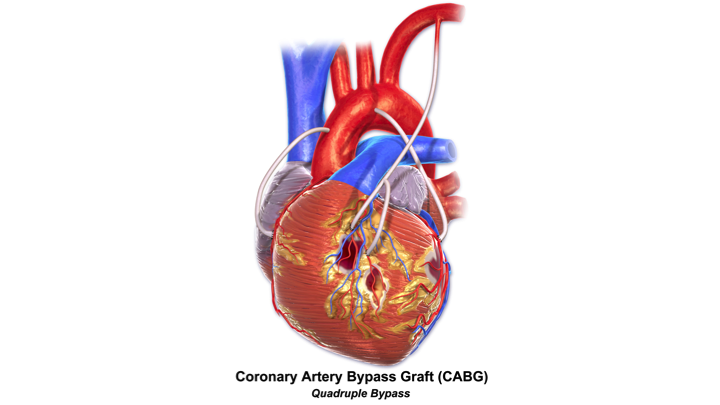 is coronary artery bypass graft surgery safe