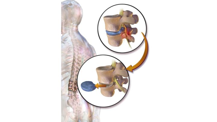 Microlumbar Discectomy (MLD)