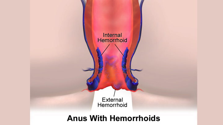 Hemorrhoidectomy