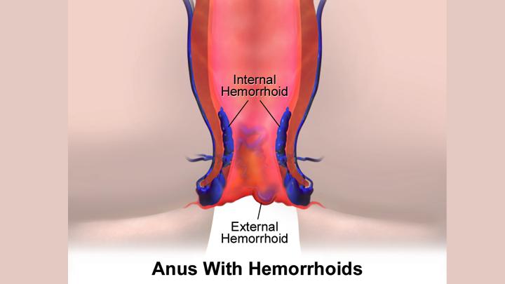 Hemorrhoidectomy