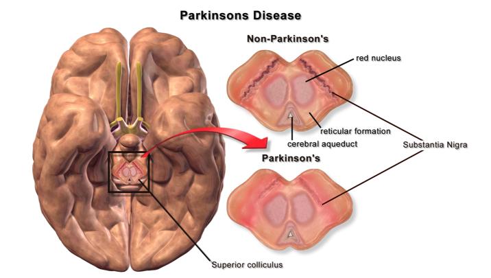 Parkinson's disease.