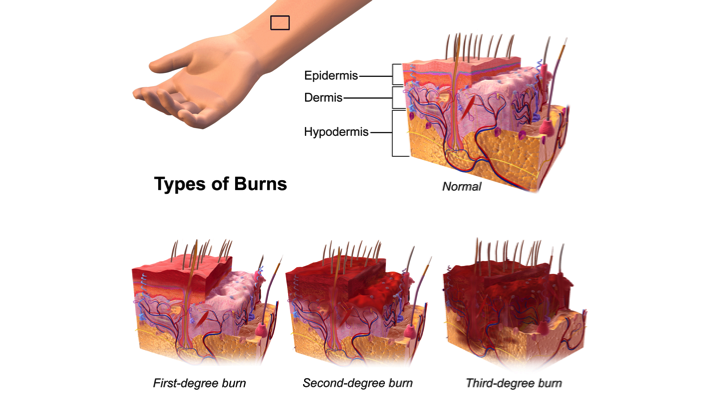 how to take care of first and second degree burns