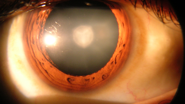 Cataract in a Human Eye.