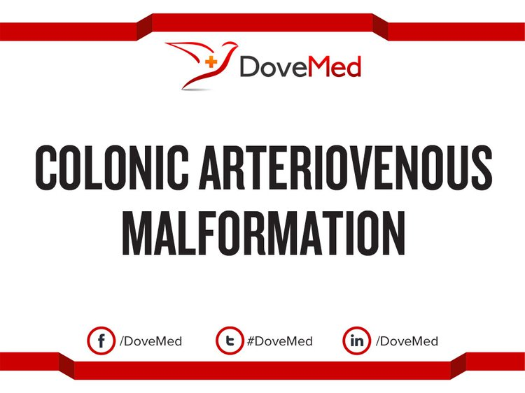 colonic arteriovenous malformation