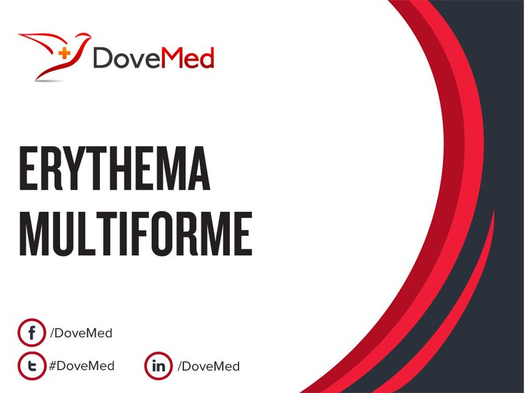 erythema multiforme joint pain