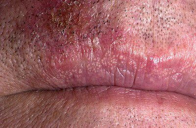 Opinion obvious. treatment for sebaceous glands on penis apologise