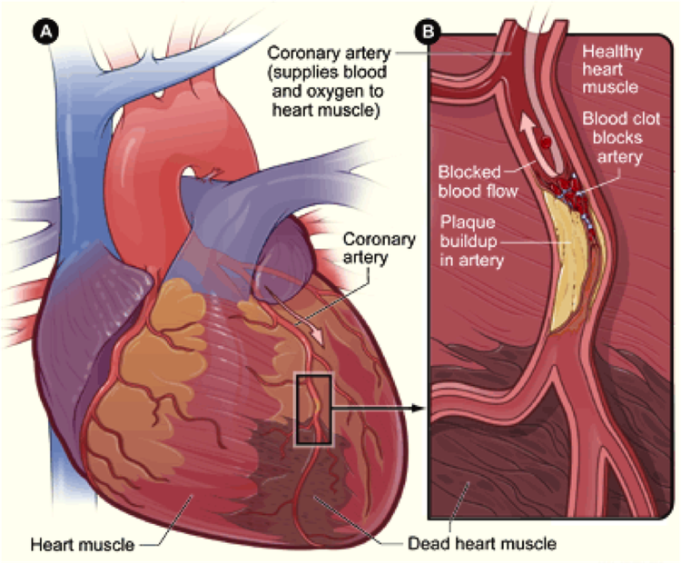New Drug Protects Heart From Cardiac Rupture After Myocardial Infarction