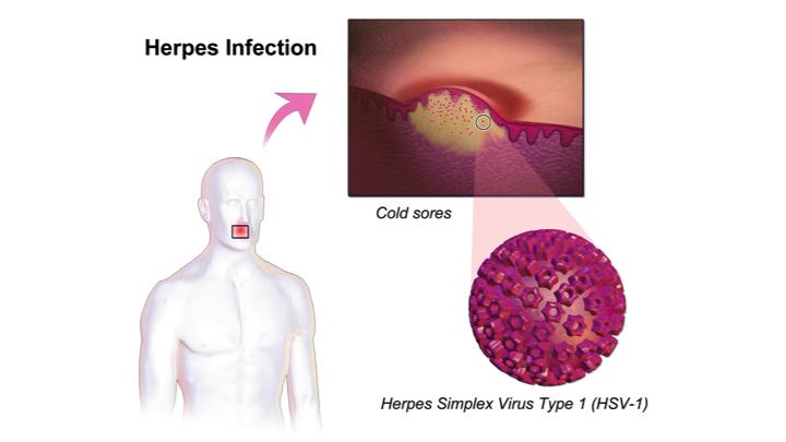 Herpes Swab Test