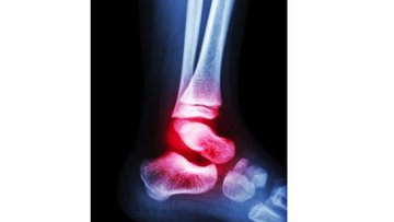 Film X-ray Child's Ankle And Arthritis At Ankle (rheumatoid).