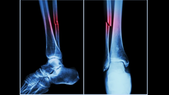 Weight Loss Surgery May Cause Significant Skeletal Health Problems