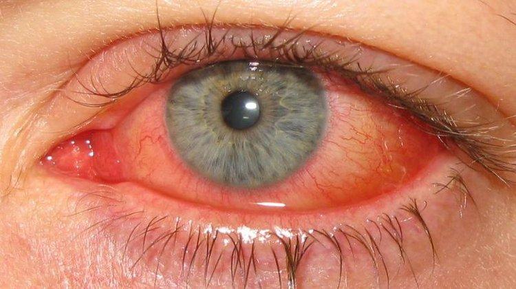 Silmätulehdus Lapsella