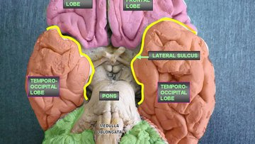 Inferior view of the brain, depicting the cerebral lobes. Lesions on the occipito-temporal lobes are correlated with associative agnosia.