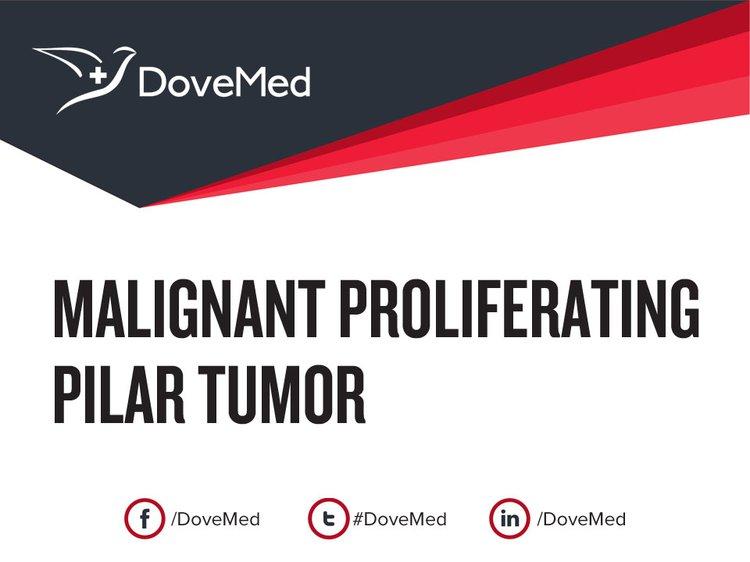 malignant proliferating pilar tumor