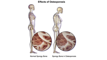 An illustration depicting osteoporosis.