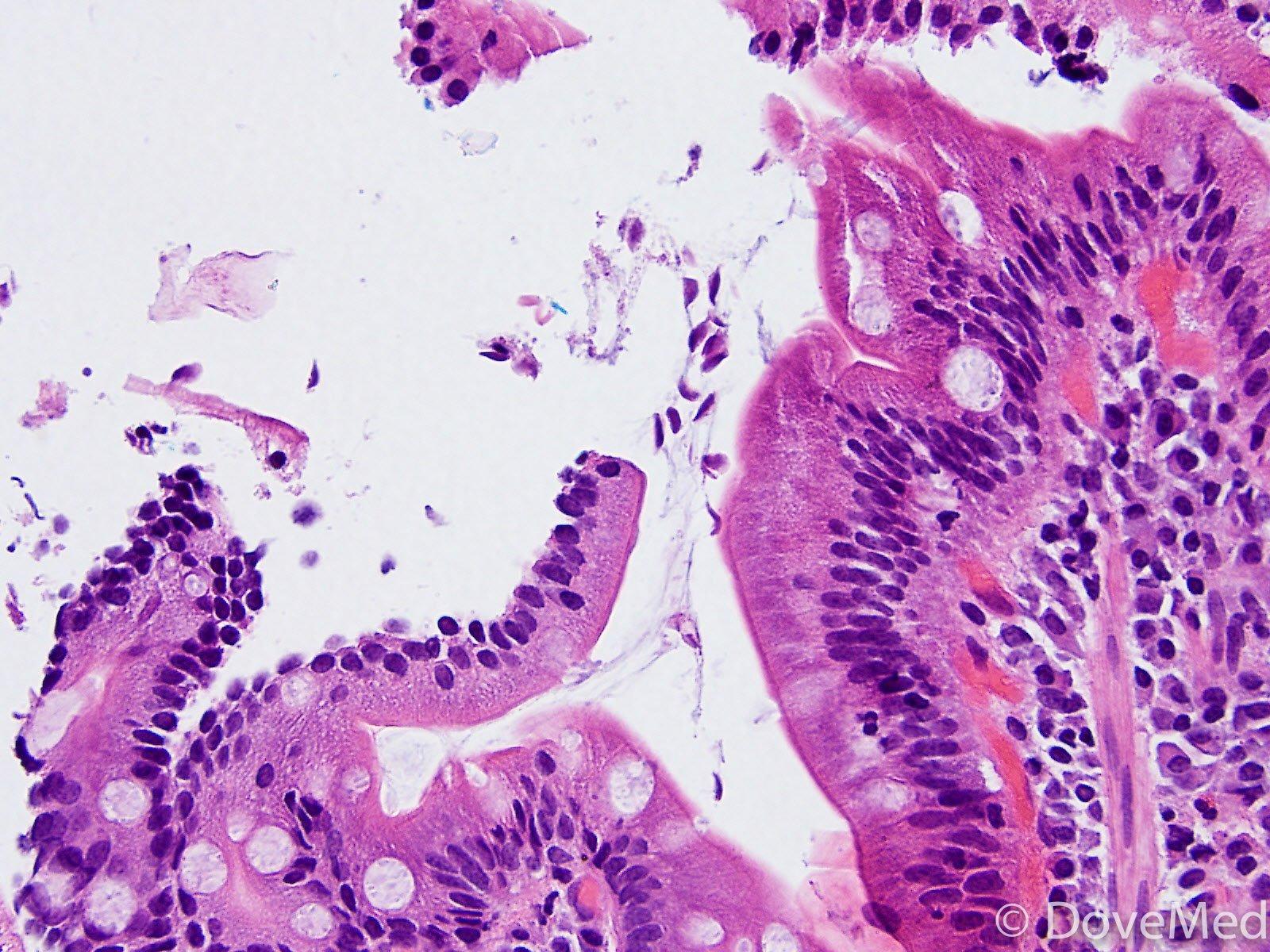 giardia duodenum histopathology