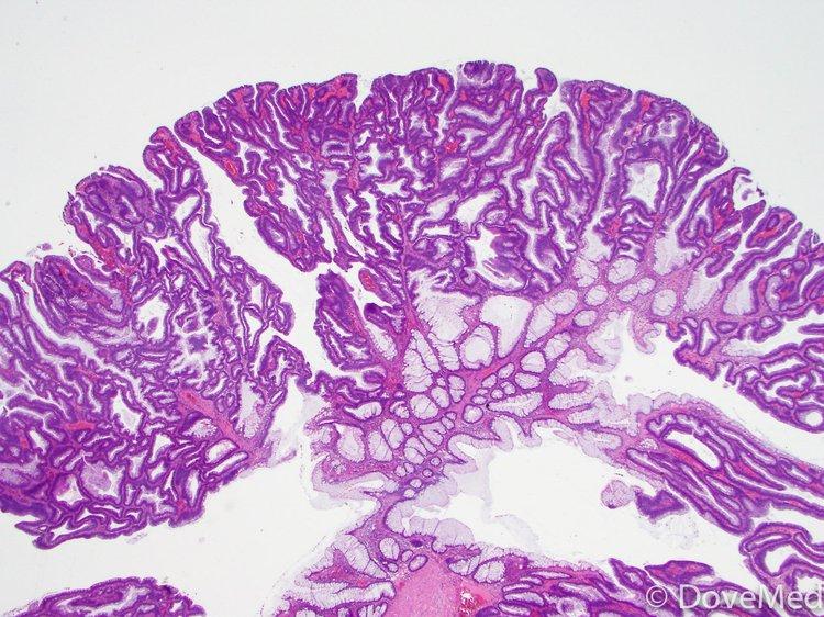 Pathology Outlines - Tubulovillous adenoma