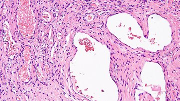 Microscopic pathology image showing benign Hemangioma of soft tissue.