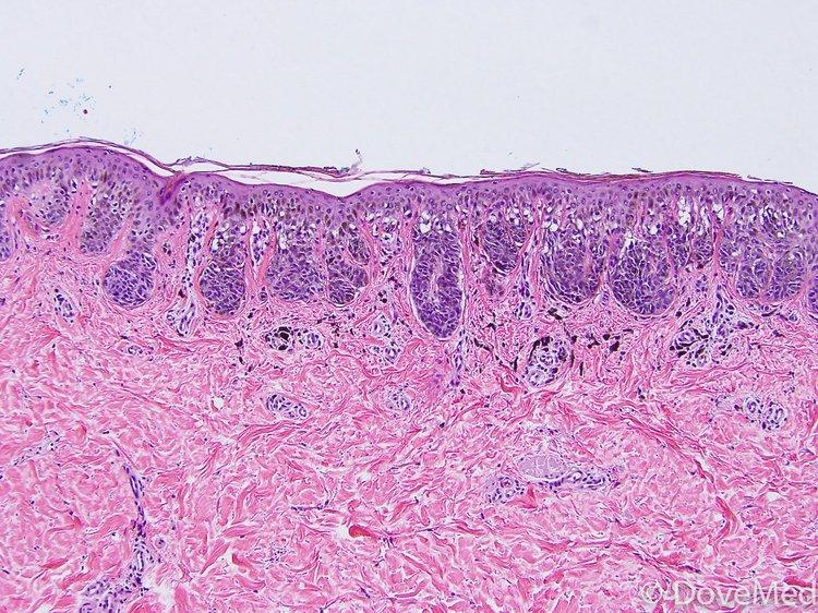 Superficial Spreading Melanoma of Skin