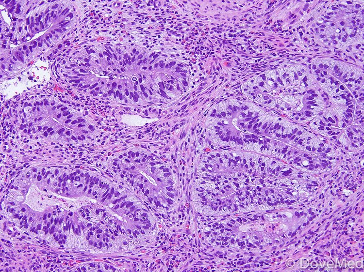 Invasive Adenocarcinoma of Lung Аденокарцинома Легкого
