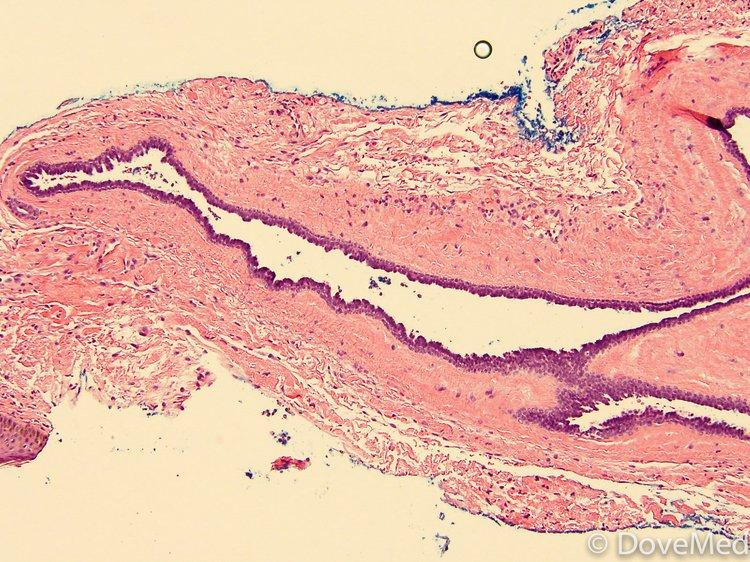 eccrine hidrocystoma of skin