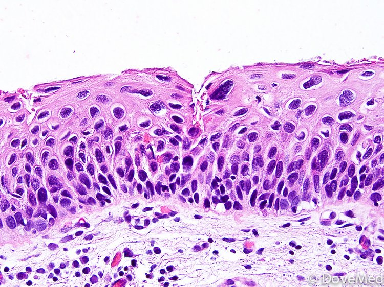 Carcinoma cell penis squamous