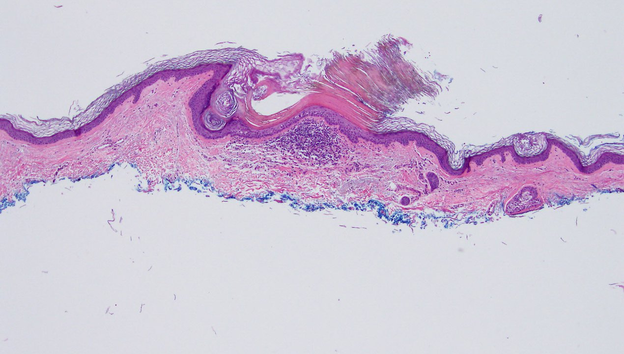 Microscopic pathology image of skin showing actinic keratosis.