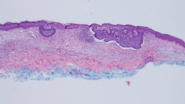 Microscopic pathology image showing Basal Call Carcinoma of superficial subtype on a skin biopsy.