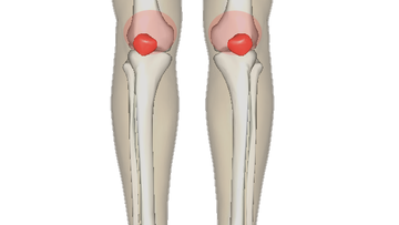Patello femoral pain syndrome.
