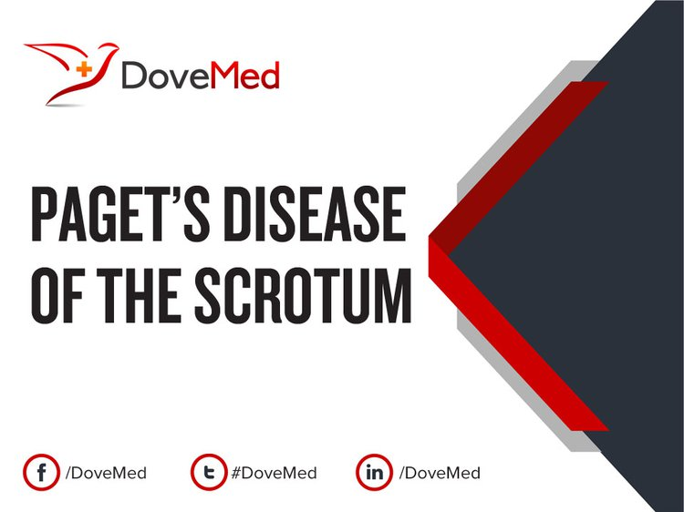 Paget's Disease of the Scrotum