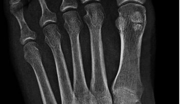 Sesamoid bones over the metatarsophalangeal joint of the great toe of the left foot of an adult woman