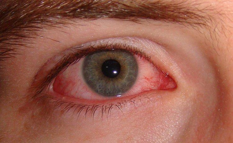 Image result for Neonatal Conjunctivitis Therapeutics