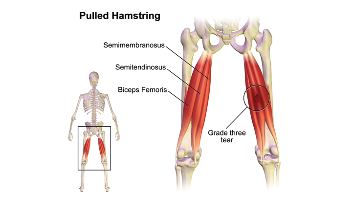 Hamstring Muscle Injuries