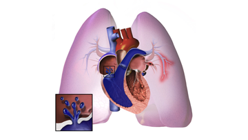 An illustration depicting pulmonary hypertension.