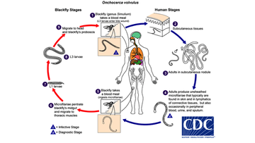 Life Cycle of Oncocerca volvulus.