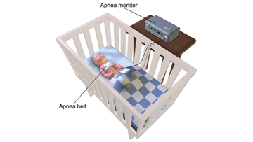 Sleep Apnea Monitor (Infant).