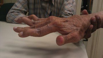 Swan neck deformity in a 65 year old Rheumatoid Arthritis patient.