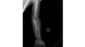 X-ray of Osteogenesis Imperfecta (OI) Type V in 11 months child.
