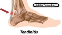 Illustration of the Achilles' tendon with tendinitis